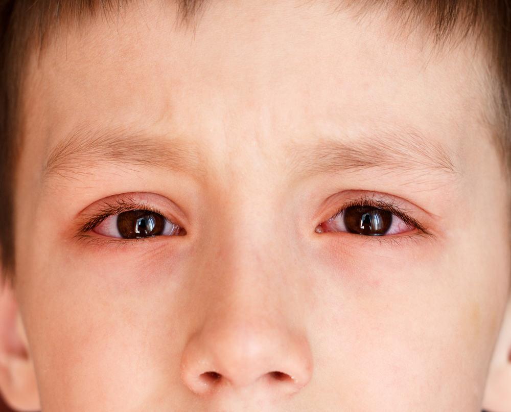 Đau mắt đỏ lan nhanh với tốc độ chóng mặt