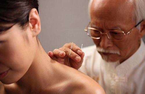 Áp dụng châm cứu trong việc giảm đau nhức