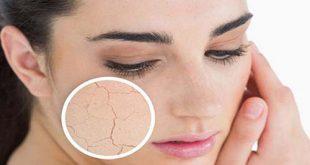 Những bệnh lý về da thường gặp nhất vào mùa đông