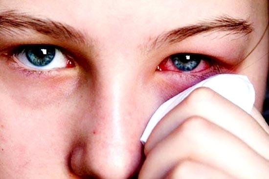 Cẩn thận trong phòng tránh bệnh đau mắt đỏ