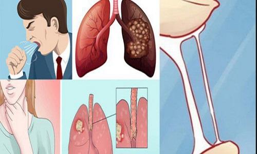 Những dấu hiệu cảnh báo sớm bệnh ung thư phổi