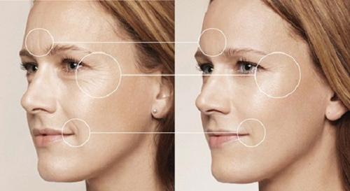 Hiệu quả từ căng da mặt bằng Thermage ai cũng mong muốn có được