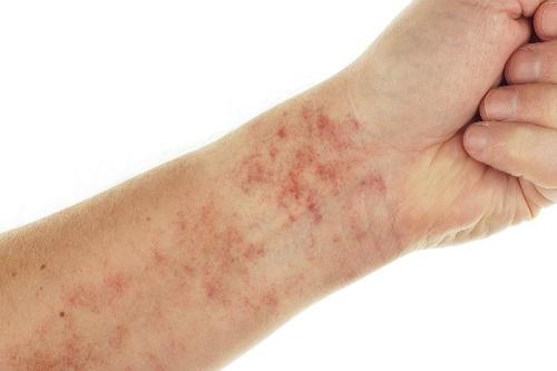 dấu hiệu nhận biết bệnh lupus ban đỏ