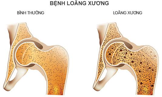 Loãng xương làm xương dễ gãy khi bị tác động