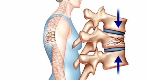 Phát hiện sớm để điều trị triệt để bệnh loãng xương