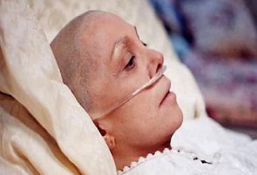 Ung thư phổi căn bệnh nguy hiểm khiến nhiều người tử vong