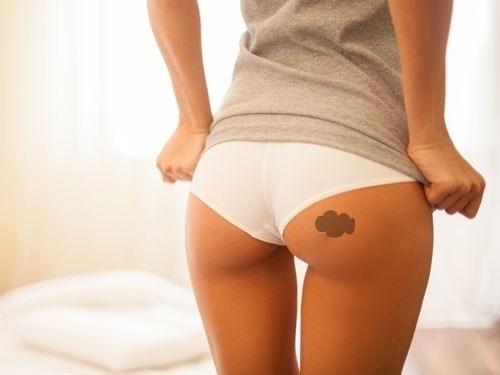 Người sở hữu vết bớt ở mông sẽ rất may mắn