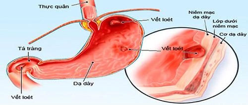 Hướng dẫn dùng cimetidin điều trị viêm loét dạ dày