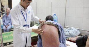 Khám và tư vấn miễn phí cho bệnh nhân Vảy nến tại Bệnh Viện Da Liễu