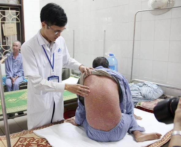 Khám miễn phí cho người bệnh Vảy nến tại Bệnh viện Da liễu