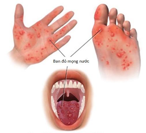 Nguyên nhân gây ra bệnh tay chân miệng