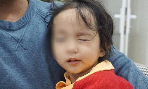 Trẻ bị liệt mặt, méo miệng vì thời tiết lạnh